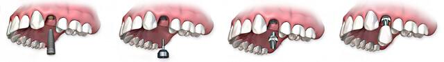 Одноэтапная экспресс имплантация зубов
