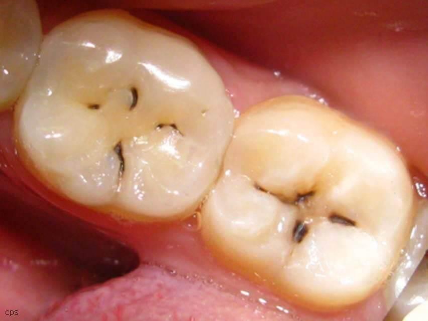 Видалення карієсу зубів у Києві: ціна, фото, відгуки