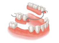 protezirovanie-zubov-osnovnoe200-146