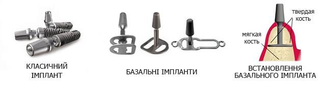 BAZALNA-IMPL-UKR