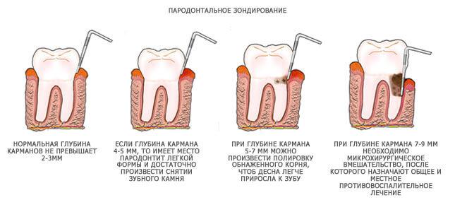 glubina-parodontalnogo-karmana