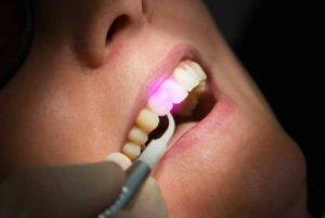 laser_stomatology
