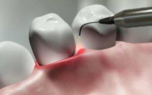 lazer-parodontit