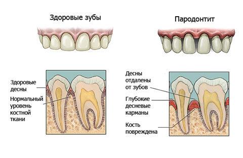 parodontit-luchshee-lechenie-v-kieve