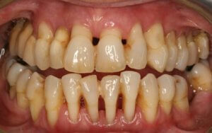 parodontoz-1