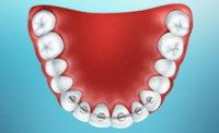 shinirovanie_zubov
