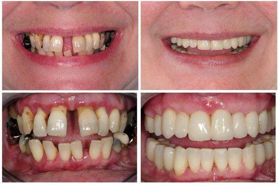 stadii-parodontoza