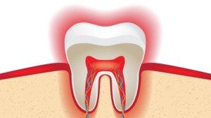udalenie-nerva-v-zube