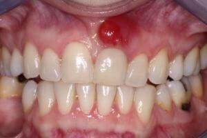 zubnoj-fljus
