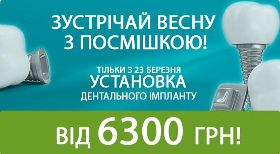 baner 555х305